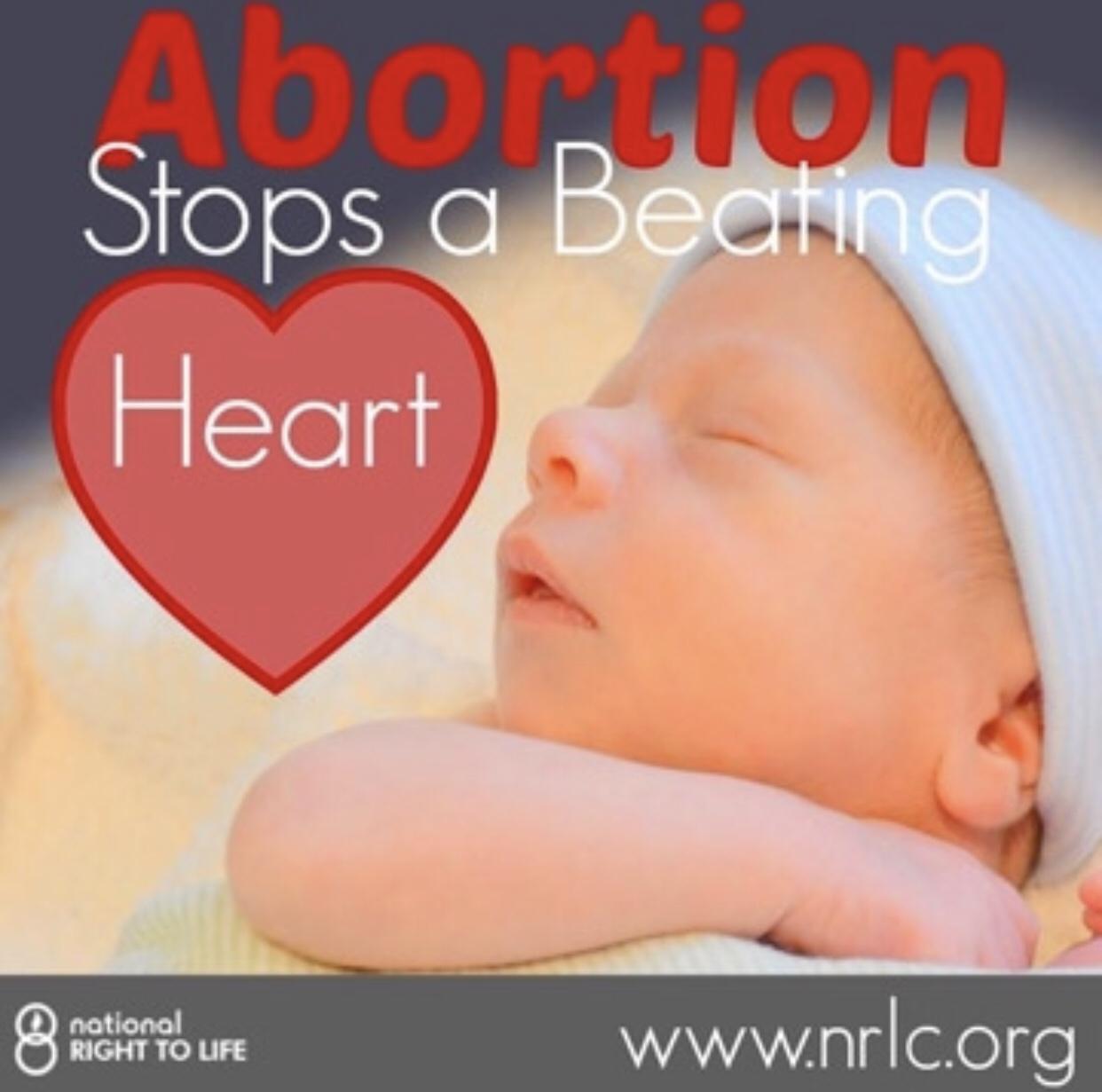 Abortion is Murder