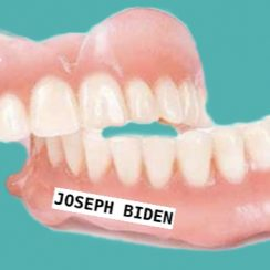 Dentures Supported by Implants